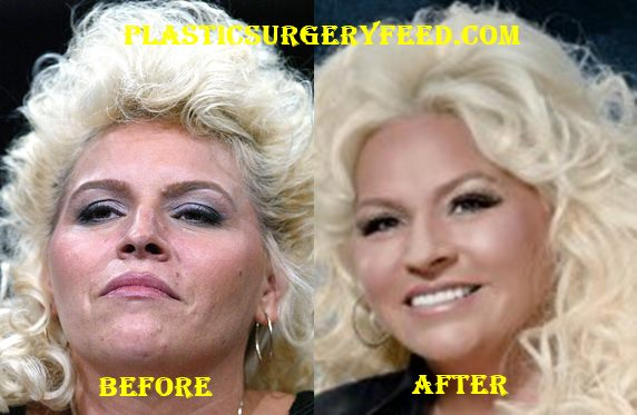 Beth Chapman Facelift and Botox