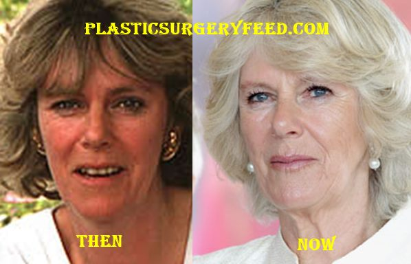 Camilla Parker Bowles Plastic Surgery - Plastic Surgery Feed K Michelle Before And After Teeth