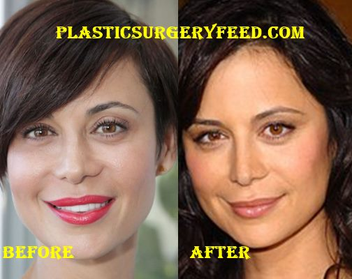 Catherine Bell Nose Job and Lips Surgery