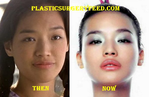 Shu Qi Lips Surgery Augmentation