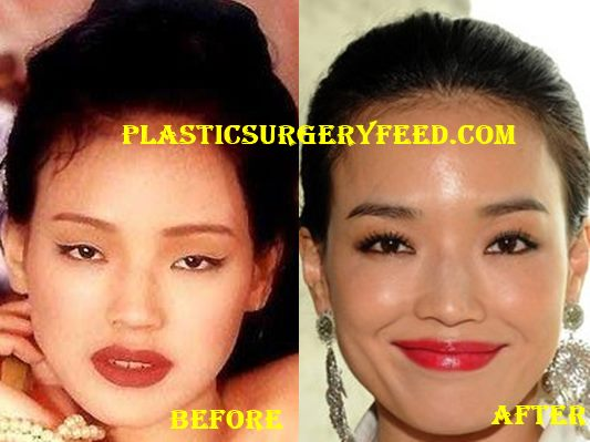 Shu Qi Nose Job Rhinoplasty