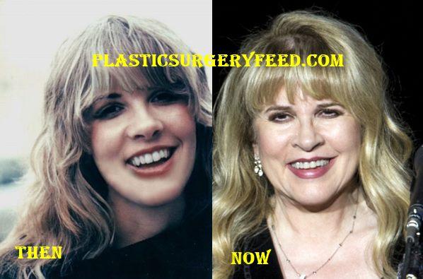 Stevie Nicks Plastic Surgery Plastic Surgery Feed