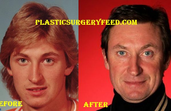 Wayne Gretzky Facelift Surgery