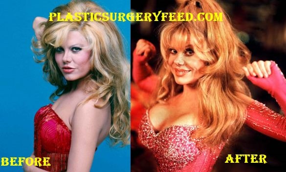 Charo Breast Implants