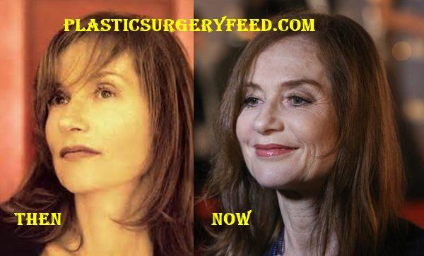 Isabelle Huppert Botox