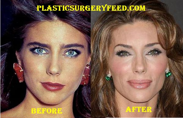 Jennifer Flavin Stallone Botox