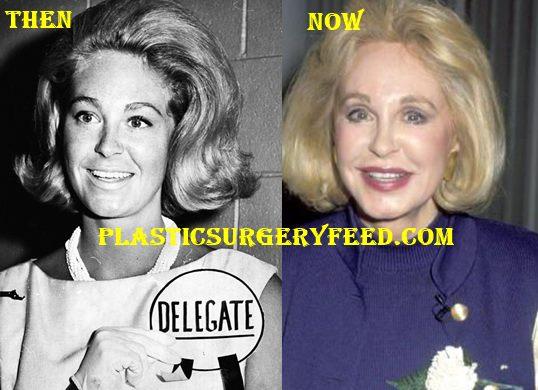 Joan Kennedy Facelift