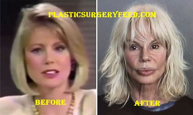 Bree Walker Botox and Facelift