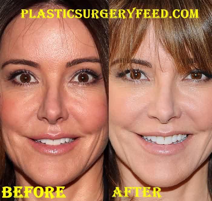 Christa Miller Botox Facelift Before After