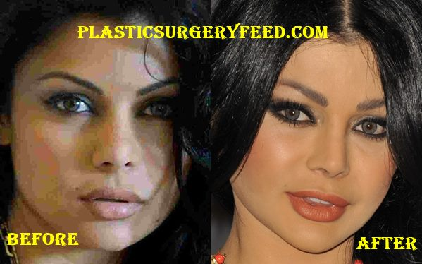 Haifa Wehbe Chin Implant