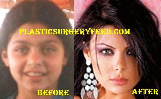 Haifa Wehbe Nose Job Rhinoplasty