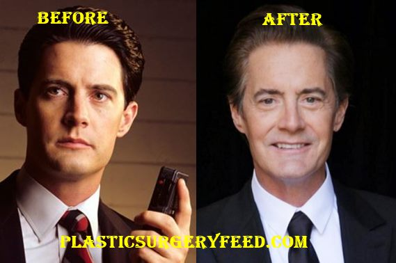 Kyle MacLachlan Botox and Facelift