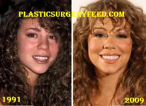Mariah Carey Nose Job