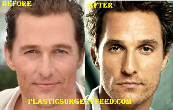 Hair Transplant Withou...