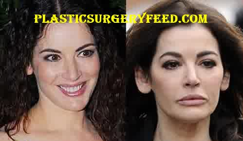 Nigella Lawson Lip Injection