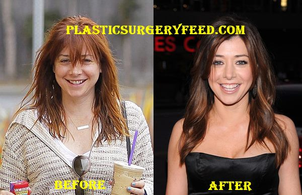 Alyson Hannigan Breast Implants
