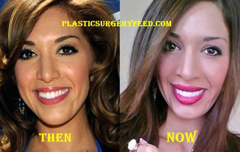 Farrah Abraham Botox and Lips Implants