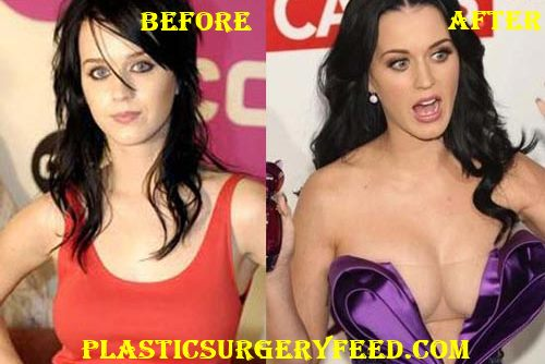 Katy Perry Breast Implants Before After