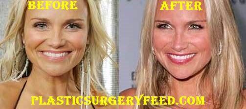 Kristin Chenoweth Botox
