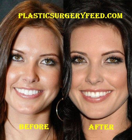 Audrina Patridge Nose Job, Lip and Chin Implants