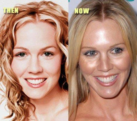 Jennie Garth Botox Plastic Surgery