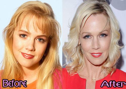 Jennie Garth Eyelid Surgery
