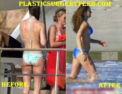 Kate Middleton Butt Implants