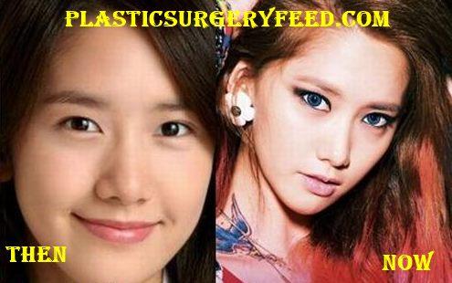 Yoona Nose Botox