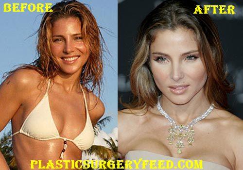 Elsa Pataky Breast Implants