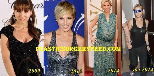 Elsa Pataky Liposuction