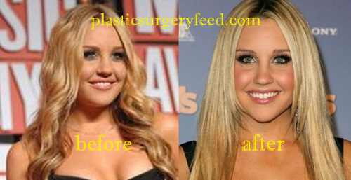 Amanda Bynes Cheek Implant