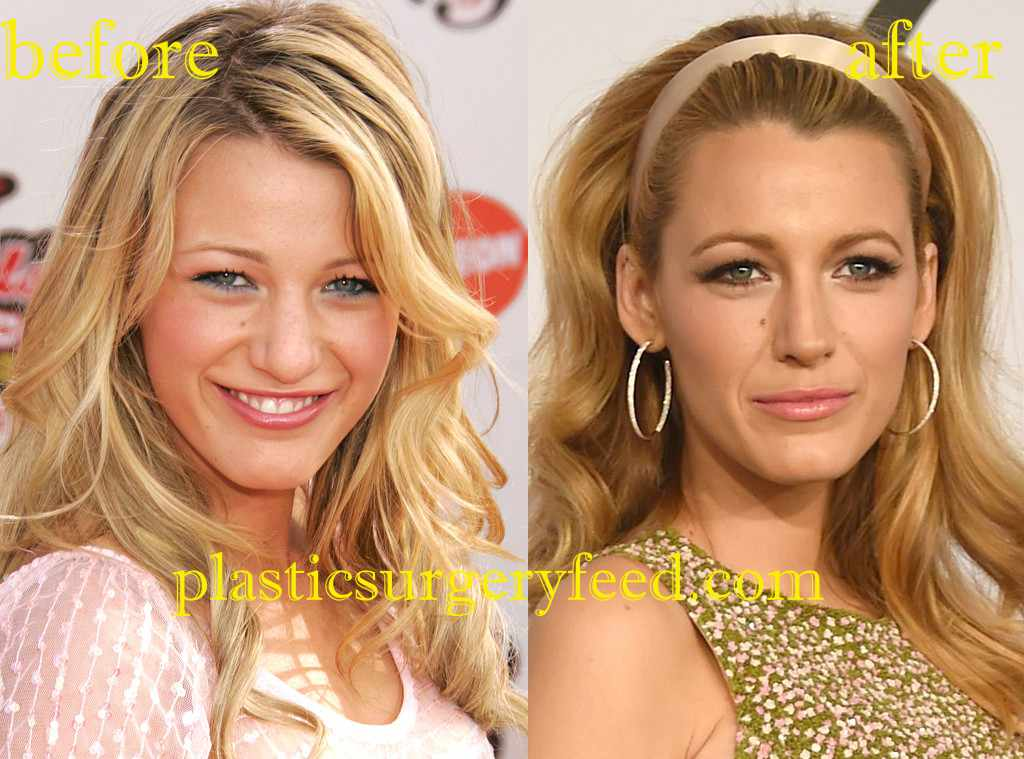 Blake Lively plastic surgery for nose job