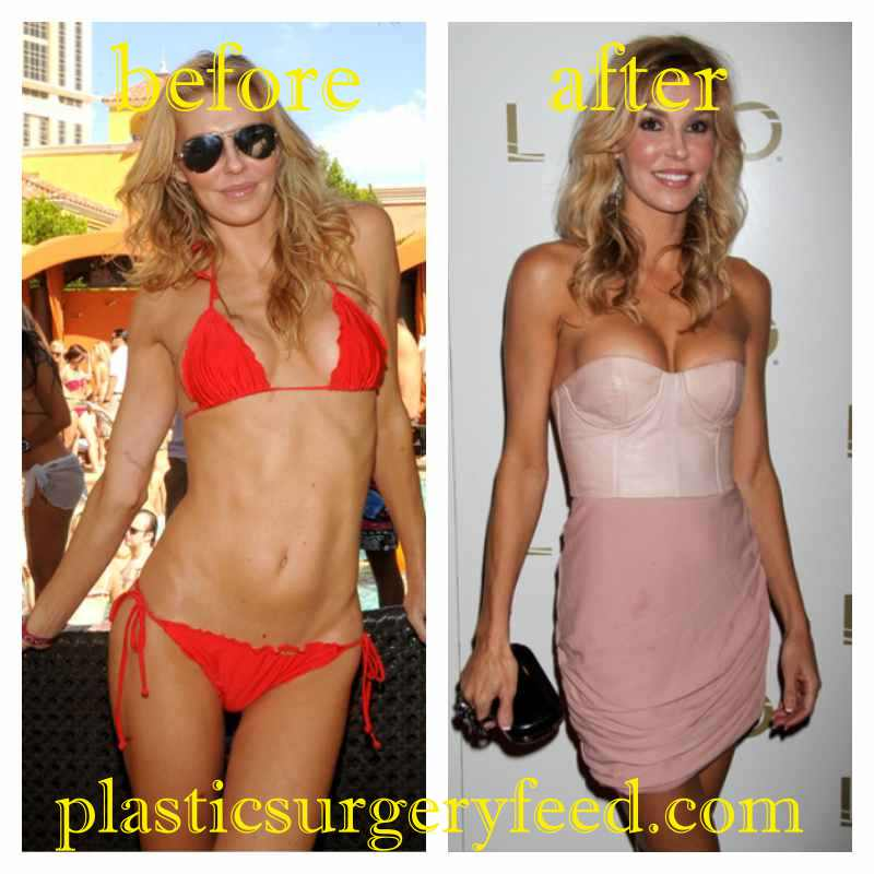 Brandi Glanville Breast Implant