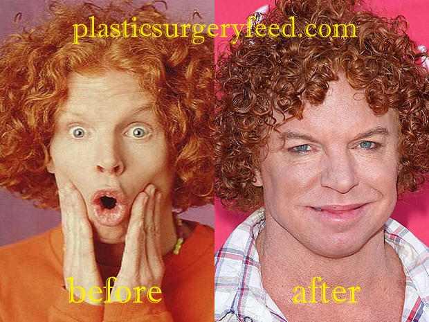 Carrot Top Botox