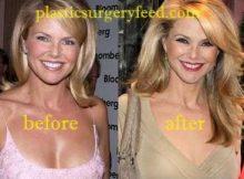 Christie Brinkley Botox anfd Facelift