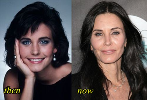 Courteney Cox got lip injection and facial filler