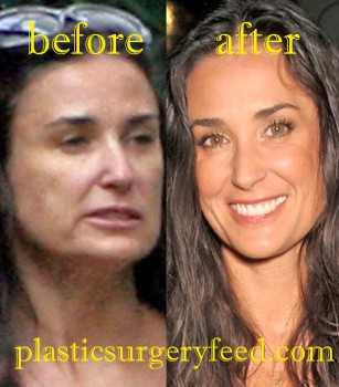 Demi Moore Botox Surgery