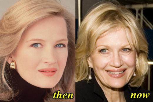 Diane Sawyer Botox