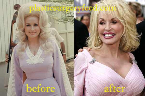 Dolly Parton Breast Implant