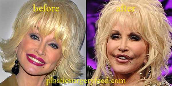 Dolly Parton Plastic Surgery Plastic Surgery Feed