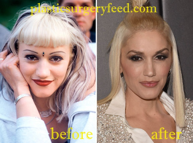 Gwen Stefani Nose Job Rhinoplasty