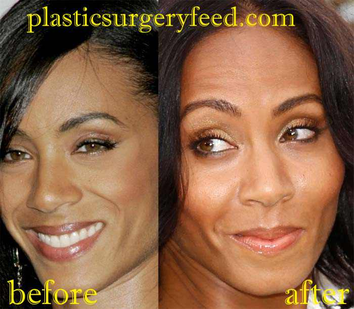 Jada Pinkett Smith Botox