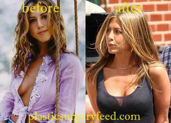 Jennifer Aniston Breast Augmentation