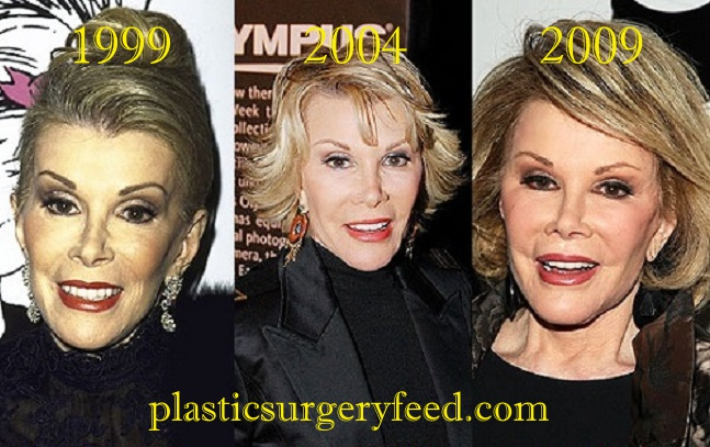 Joan River Plastic Surgery