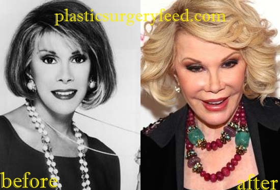 Joan River plastic surgery for eyelids done