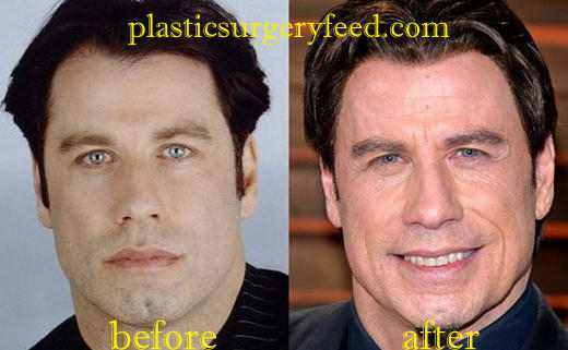 John Travolta Facelift