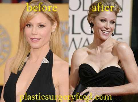 Julie Bowen breast Augmentation