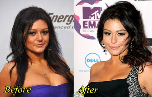 Jwoww Breast Implants