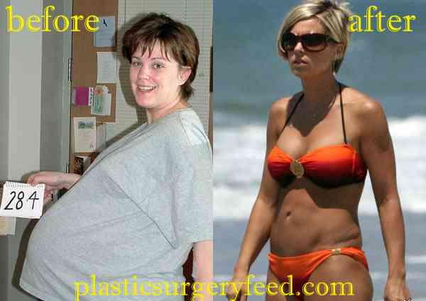 Kate Gosselin Tummy Tuck