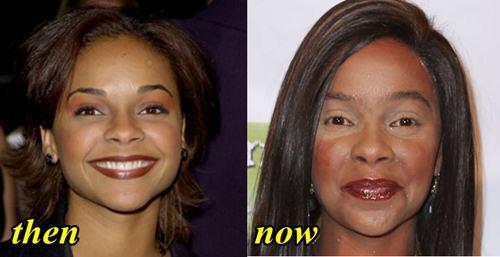 Lark Voorhies Botox and Facelift